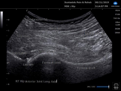 Ultrasound anterior hip joint