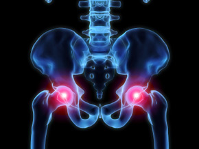 hip pain prolotherapy
